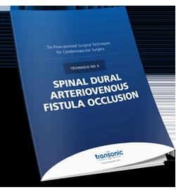 Spinal Dural Arteriovenous Fistula Occlusion